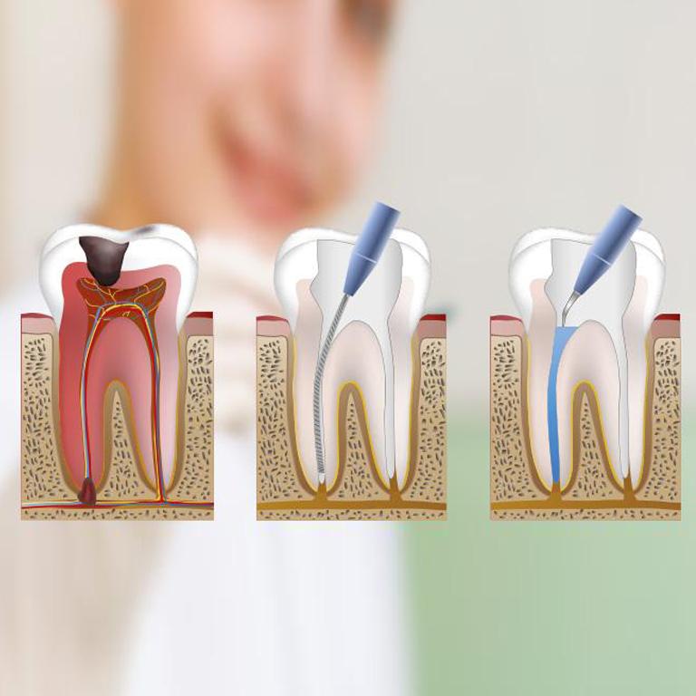 endodoncia sin dolor