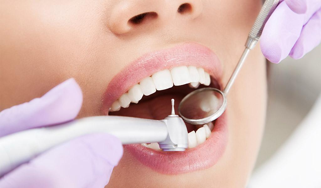 limpieza dental ultrasonido
