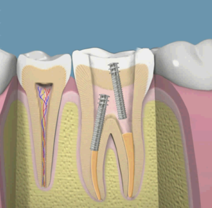 perno dental barato